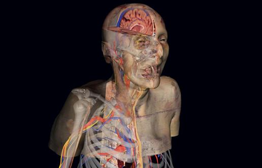 Vsako telo je nekaj posebnega